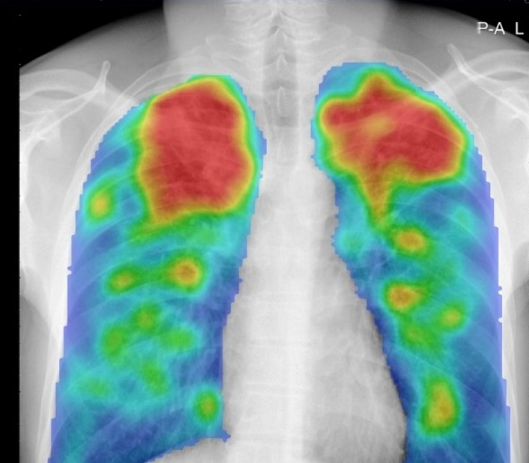 New screening tool for Tuberculosis